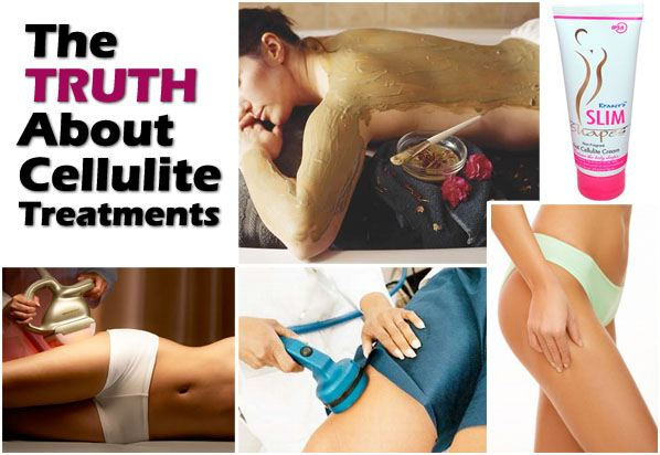 The Truth About Cellulite Treatments post image