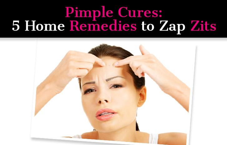 Pimple Cures: 5 Home Remedies to Zap Zits post image
